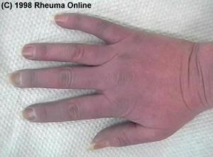 Plötzlich Blaue Hände Ursache