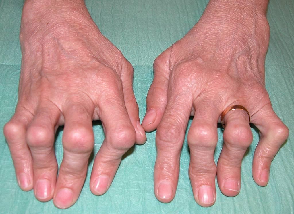 Rheuma erkennen und behandeln