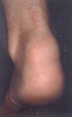 posterior enthesis Ultrasound features of the posterior tibialis tendon and peroneus brevis complete enthesis visualization was achieved more frequently in the perpendicular than.