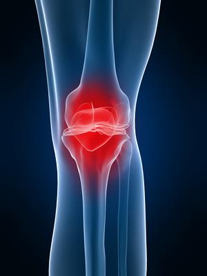 Arthrose: Auswirkungen von mechanischem Stress und systemischen ...