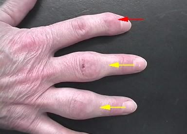 l nge des ringfingers als indikator f r eine arthrose rheuma online. Black Bedroom Furniture Sets. Home Design Ideas