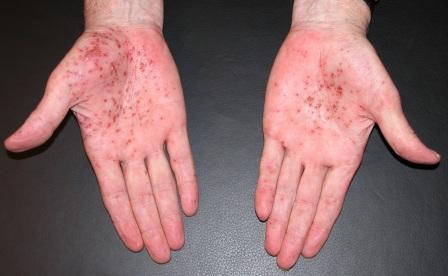 Die Behandlung des Ekzems auf dem Finger der Hand