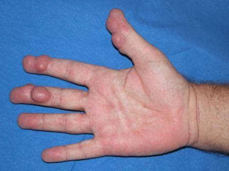 psoriasis arthritis biologika